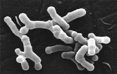 Bifidobacterium_longum_en_microscopie_électronique