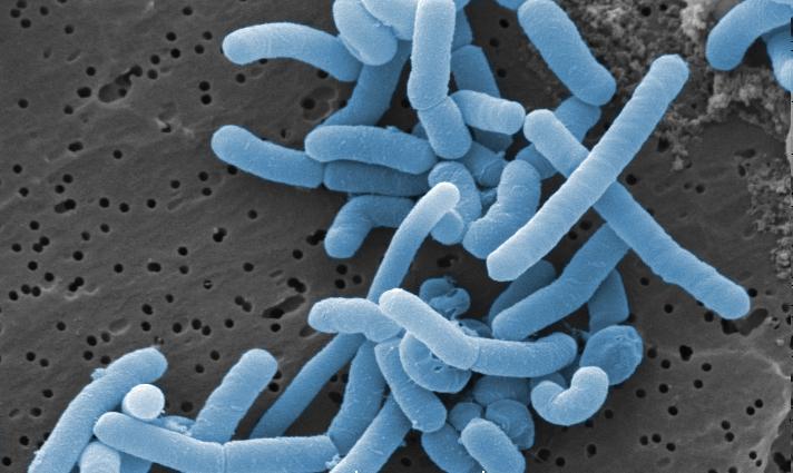 Lactobacillus_paracasei